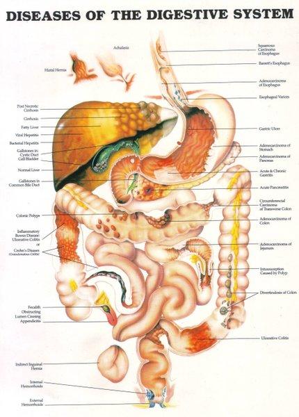 Macam Gangguan atau Penyakit pada Sistem Pencernaan Manusia